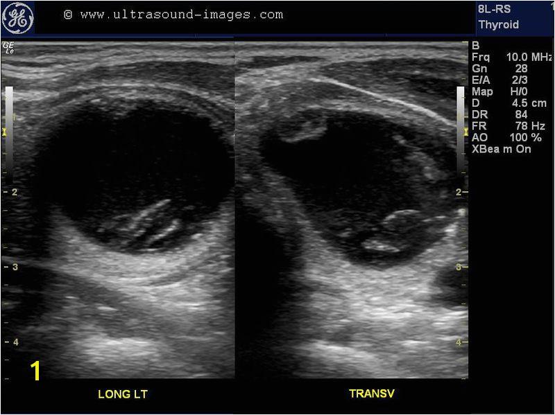 Mural Nodule Thyroid A Gallery Of High Resolution Ultrasound Color Doppler & 3d