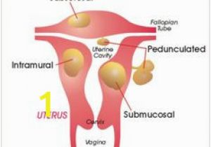 Mural Fibroid In Uterus 22 Best Uterine Fibroids Images