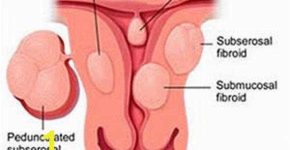 Mural Fibroid In Uterus Uterine Fibroids Uterine Fibroid Embolization Uterine Fibroids