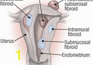 Mural Fibroid In Uterus What to Do About Fibroids Harvard Health
